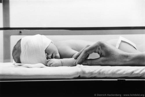 Bestrahlung im Brutkasten - Münster Behandlung eines Säuglings gegen Gelbsucht - Foto © Dietrich Hackenberg